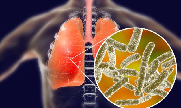 Energieeffiziente Lösung zur Legionellenprävention